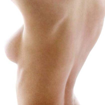 BIOTEB Bruststraffung