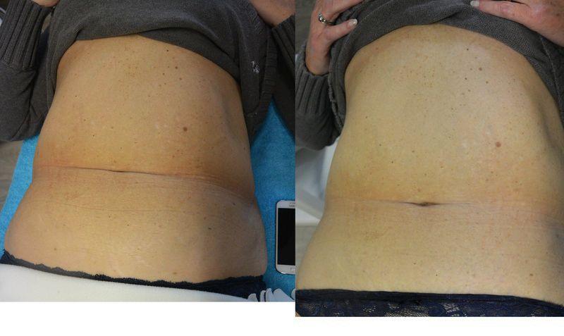 Ultraschall Kavitation Vorher Nachher