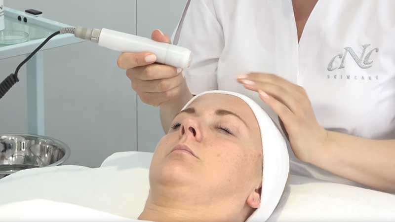 coldPlasma Treatment