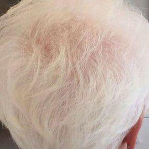 Haarwuchs Nachher