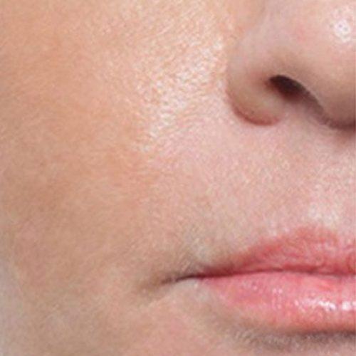 Lippenfaeltchen Nachher