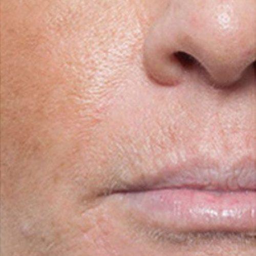 Lippenfaeltchen Vorher